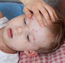Alergi pada Kulit Anak