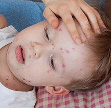 kenali-faktor-penyebab-alergi-pada-bayi_small