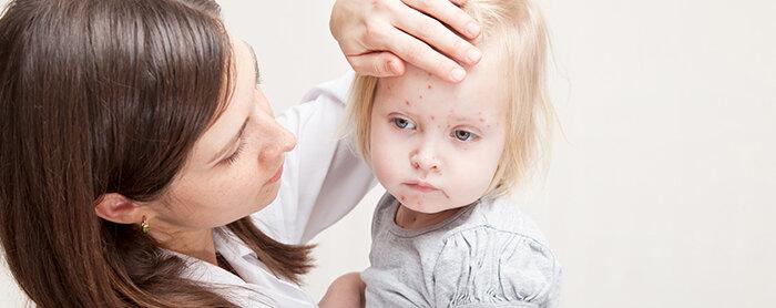 Gangguan Nutrisi dan Tumbuh Kembang pada Bayi Alergi