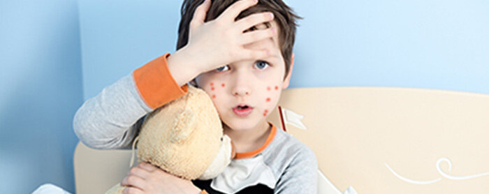 Penyakit Alergi pada Awal Kehidupan Bayi